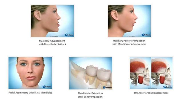 La chirurgia maxillo-facciale come soluzione alle anomalie di viso, bocca, mandibola ecollo.