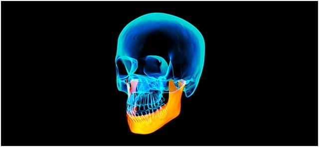 Patologie della Articolazione Temporo - Mandibolare (ATM): come riconoscerle e come trattarle